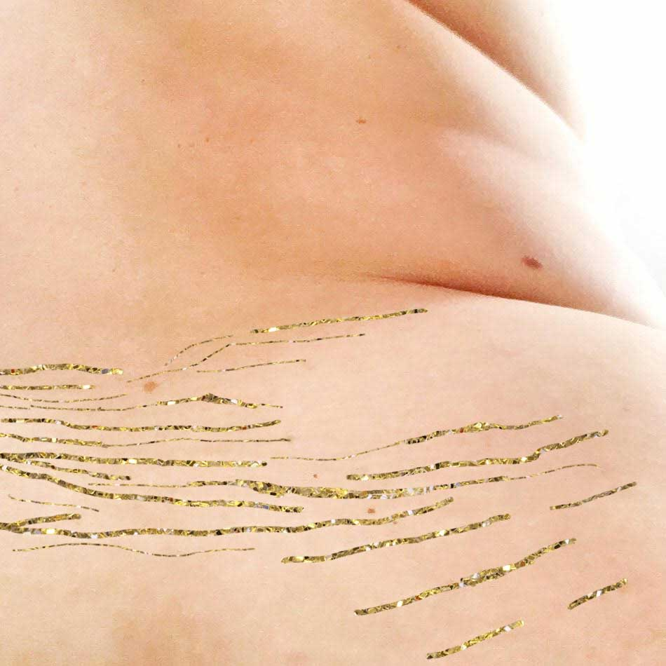 Stretchmarks are normal ! #Tigermarks #Loveyourlines